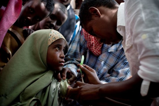 Caption to come.  Photographer's caption (NOT FACTED CHECKED): A young girl has her arm measured at a nutritional assessment organised by DIAL, a local NGO who is a partner of UNICEF, at a weekly assessment held in the town centre in Ras Kamboni, Somalia on the 6th July, 2012. Ras Kamboni has seen no foreign assistance or development aid for the last fifteen years, The Kenyan Military took control of Ras Kamboni in October last year, when they first crossed the border into Somalia.